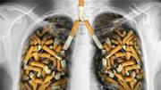 肺大泡和肺氣腫有什么區別